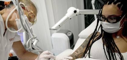 Bald nur noch beim Arzt – Tattoo-Entfernung wird deutlich teurer