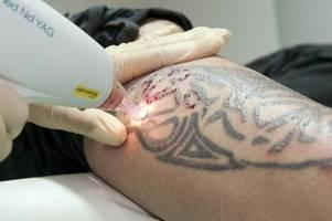 Nur noch Ärzte sollen Tattoos entfernen - wird die Behandlung zum Luxus?