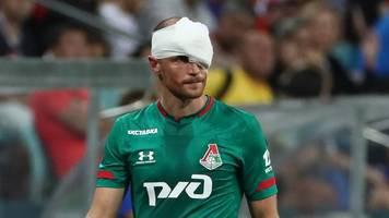 champions-league-auftakt - trotz platzwunde: höwedes reist mit moskau nach leverkusen