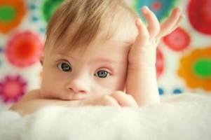Pränataldiagnostik: Down-Syndrom: Kassen tragen Bluttest-Kosten für Risikomütter