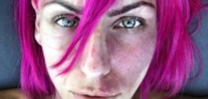 Feuermal im Gesicht: «Ich wurde gefragt, ob ich misshandelt werde»