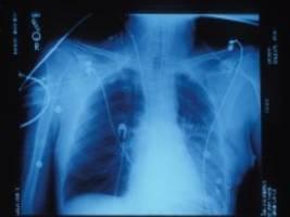 medizin: lebensrettende lunge, ganz ohne wartezeit