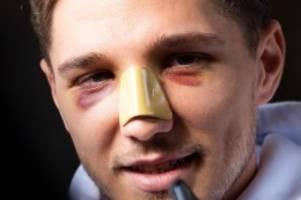 Hertha-Verteidiger: Stark trotz Nasenbeinbruch einsatzbereit: Alles gut