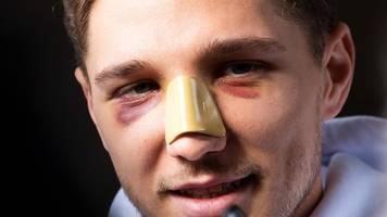 Hertha-Verteidiger - Stark trotz Nasenbeinbruch einsatzbereit: Alles gut