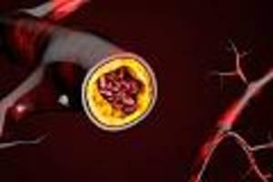 zu oft, zu selten? - streit um cholesterinsenker: arzt erklärt, wem sie mehr schaden als nutzen