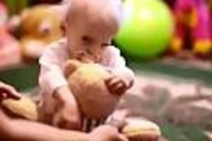 fall aus der ukraine - extrem seltene krankheit: anna stirbt mit 8 - sie hatte den körper einer 80-jährigen
