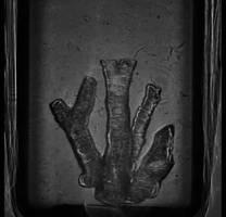 Arterien aus dem 3D-Drucker