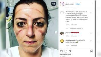 covid-19: kampf gegen das virus: erschöpfte Ärzte und pflegekräfte zeigen ihre gesichter