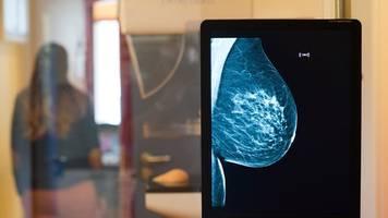 immer weniger frauen gehen zum mammografie-screening