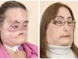 connie culp wurde 57: erste frau mit gesichtstransplantation tot