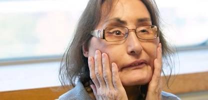 Connie Culp: Erste US-Patientin mit Gesichtstransplantation ist tot