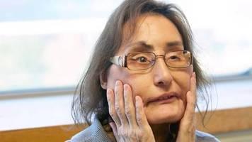 zwölf jahre nach eingriff : connie culp, die erste us-patientin mit gesichtstransplantation, ist verstorben