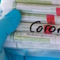 news zum coronavirus: rki meldet 23.449 corona-neuinfektionen in deutschland