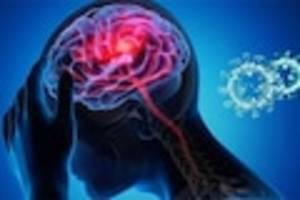 """Gestörter Glucosestoffwechsel - Forscher über Spätfolge Neuro-Covid nach Infektion: """"Nicht auf schwere Verläufe begrenzt"""""""