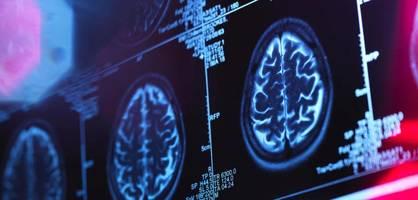"""""""ein meilenstein in der alzheimerforschung"""""""