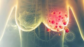 olivia newton-john hat brustkrebs im endstadium - brustkrebs trifft jede achte frau: welche symptome sie nicht ignorieren sollten